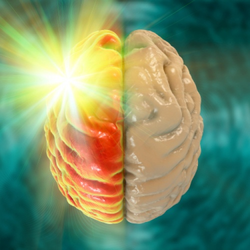 Najčastejšie otázky k migréne