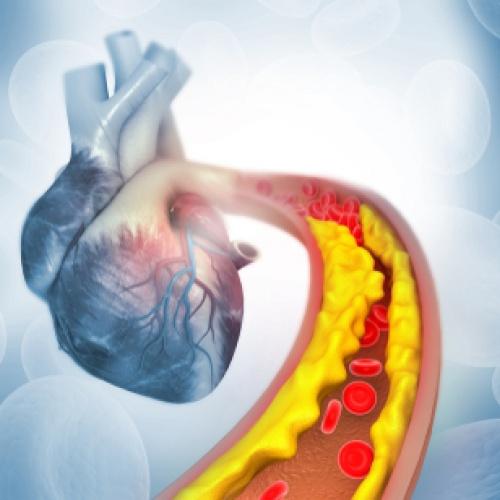 Zistil vám lekár vysoký cholesterol v krvi?